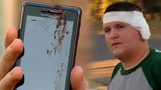 Телефон разорвал ухо человеку